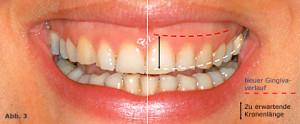 Parodontale Korrekturen