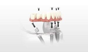 What Are All On Four Dental Implants?