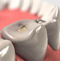 Warranty dental fillings