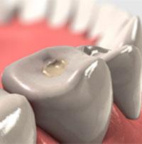 Warranty dental fillings