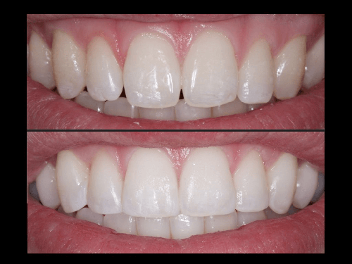 composite treatment