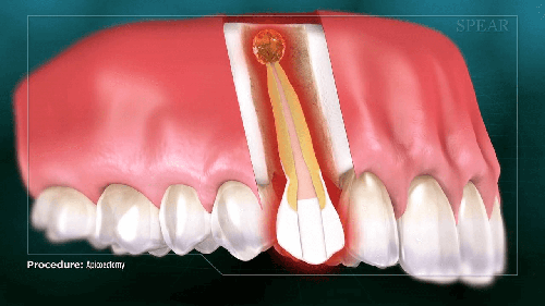 periapical infection