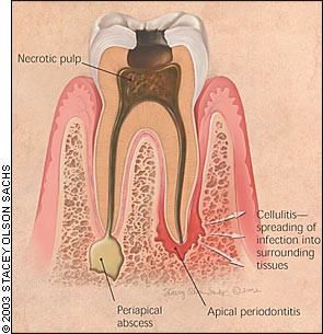 periapical