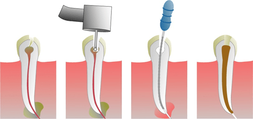 root canal treatment filing and obturation