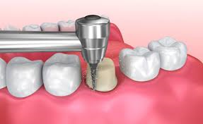 tooth preparation