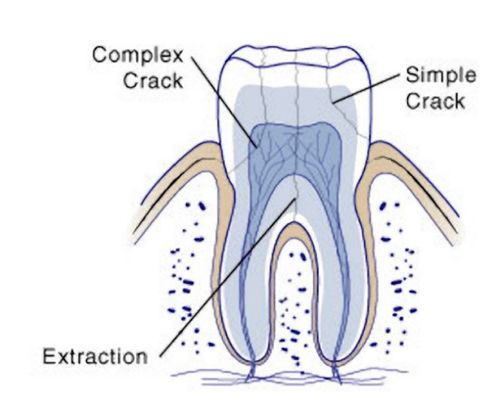 cracked teeth stages