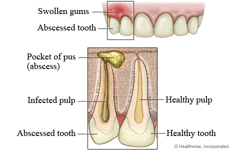 dental abscess