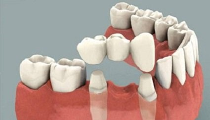 prosthodontic-dentistry