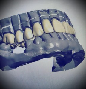 designing-cadcam-temporary-crowns