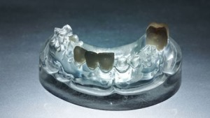 full-ceramic-crowns
