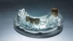 full-ceramic-crowns